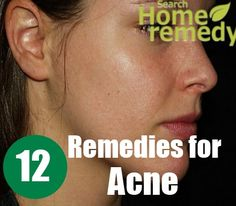 Search Home Remedy - http://www.searchhomeremedy.com/herbal-remedies-for-acne/