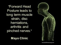 Forward Head Posture is why your neck and upper back hurt, Let us help not live in pain. Set your free appointment today 805.449.0061