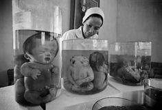 Agent Orange Effects photo 1....Stillborn deformed fetuses preserved in formaldehyde at the Tu Du Hospital in Ho Chi Minh City.