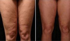 How to Get Rid of Cellulite on Legs? How to get rid of cellulite on legs? Home remedies for cellulite on legs. Treat cellulite on legs fast and naturally. Ways to cure cellulite on thighs. Cellulite Scrub, Cellulite Remedies, Reduce Cellulite, Cellulite Cream, Fitness Workouts, Yoga Fitness, Tips Belleza, Body Scrubs, Anti Cellulite