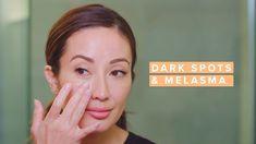 Reduce Melasma & Dark Spots with This Skincare Routine Beauty Routines, Skincare Routine, Concealer, Best Dark Spot Corrector, Serum, Vitamin A, Pca Skin, Bright Skin, Acne Prone Skin