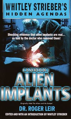 "Read ""Casebook: Alien Implants"" by Roger Leir available from Rakuten Kobo. Shocking evidence that alien implants are real.as told by the doctor who removed them! The objects are. Non Fiction, Alien Implants, Alien News, Aliens On The Moon, Lying Eyes, Grey Alien, Creepy Ghost, Alien Abduction"