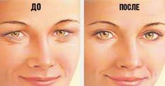 Зона вокруг глаз подвержена старению в первую очередь. Именно в этой области быстрее всего появляются морщинки, кожа теряет упругость, истончается и обвисает. Лифтинг век  Гимнастика для глазПодними…