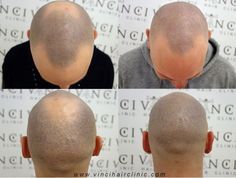 The Vinci Difference: Best Micro Scalp Pigmentation Treatment Available The technique behind MSP is based on the pigments implant at the epidermal level and has been designed to create an optical hair simulation on the scalp that reproduces the look of a shaved or closely cropped hair. Vinci Hair Clinic has developed this treatment over several years, and will guide you through your MSP options.  #scalppigmentation #MSP #vincihair #hairloss #scars #alopecia #pigmentation