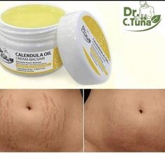 Say bye bye to stretch marks forever! C Tuna's Calendula Oil Cream Balsam helps nourish and soothe the skin, preventing it from drying out and helps with elasticity (which prevents fut. Farmasi Cosmetics, Natural Cosmetics, Face Care, Skin Care, Brow Mascara, Calendula Oil, Dry Sensitive Skin, Dry Skin, Organic Beauty