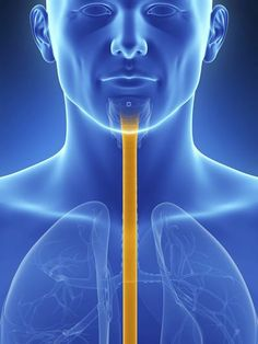 Using radio-frequency waves to treat certain cases of Barrett's esophagus can significantly cut risk of the condition progressing to esophageal cancer, new clinical trial suggests: