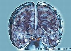 Brain Can Be Trained to Be Less Impulsive - can pertain to ADHD and addictive behaviors