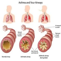 Asthma is a lung disease that causes difficulty breathing. Asthma can be either acute or chronic. Asthma attacks occur when there is an obstruction in the flow… Home Remedies For Asthma, Natural Asthma Remedies, Asthma Relief, Top 10 Home Remedies, Asthma Symptoms, Herbal Remedies, Health Remedies, Holistic Remedies, Carpal Tunnel