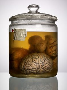 Malformed Study no. 009 -- Adam Voorhes, photographing human brains from the collection at the Texas State Mental Hospital