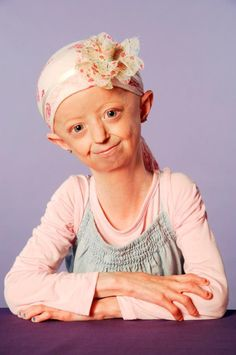 Hayley Okines, a British teenager with an extremely rare disease called progeria, died on Thursday at the age of 17 — exceeding doctors' expectations that she would not live past Hayley Okines, Rare Disease, Police Dogs, Doctors, Thursday, Youth, British, Parenting, Teen