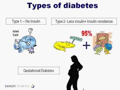 Natural History of Diabetes Type 1 -- To view further for this item, visit the image link.