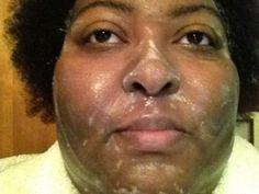 @Makari de Makari Clarifying Exfoliating Antiseptic Soap Antiseptic Soap, Even Skin Tone
