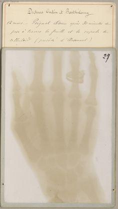 ☞ MD ☆☆☆ Barthélemy, Toussaint . - [Collection de 65 photoélectrographies, premières radiographies obtenues en France]. Paris, 1896. BIU Santé -