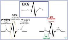 Ekg Interpretation, P Wave, Nursing Information, Nclex Rn, Nursing School Notes, Medical Assistant, Med School, Studying, Studio