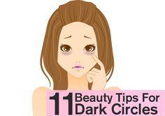 11 Beauty Tips To Cure Dark Circles Naturally