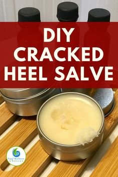 Looking for cracked heel remedies? You will find this cracked heel salve diy recipe with essential oils very helpful! #crackedheelsremedy essentialoildiy #crackedheelsalve via @wellnesscarol