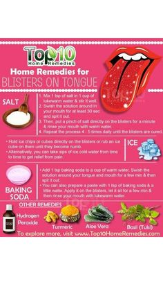 Blister On Tongue, Headache Remedies, Oral Hygiene, Natural Home Remedies, Dental Care, Teeth Whitening, Health, Natural Remedies, Tooth Bleaching