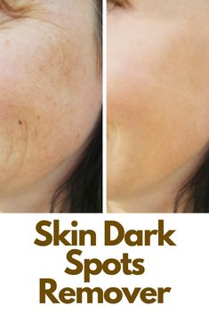 Dark skin discolorations can be one of the most annoying innopportune occurences after a long sunny summer. Treatment is mostly palliative so you need to know what options you have. Read more here Dark Spots On Skin, Dark Skin, Bleaching Your Skin, Topical Retinoids, Intense Pulsed Light, Pregnancy Hormones, Hormonal Changes, Light Therapy, Look Younger