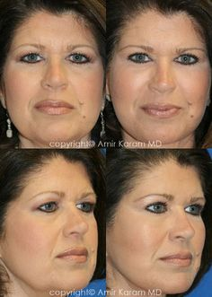 Consider a fat transfer procedure in San Diego - La Jolla California with Dr Karam. Information on fat transfer procedures, full face fat transfer, and micro fat transfers to help restore volume to the face. La Jolla California, Fat Transfer, Face, The Face, Faces, Facial