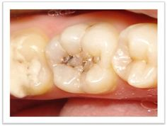 Dental caries - definition, etiology and risk factors