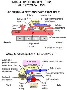Instant Anatomy - Abdomen - Vertebral Levels - Longitudinal section posterior abdominal wall Vascular Ultrasound, Ultrasound Sonography, Aorta Abdominal, Ultrasound School, Ultrasound Technician, Interventional Radiology, Ultrasound Pictures, Ultrasound Gender, Medical Anatomy