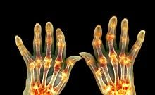 Here Are Things That Can Cause Rheumatoid Arthritis Flares