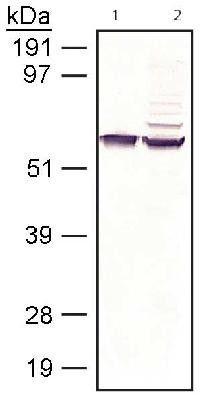 Western Blot: RPE65 Antibody (401.8B11.3D9) [NB100-355] - RPE65 detected in bovine and human samples. Lane 1: bovine RPE membrane, lane 2: recombinant human RPE transfected COS7 cell lysate.