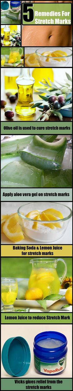 5 Amazing Stretch Marks Removal Home Remedies #Stretchmarkremoval #AntiagingAloeVera