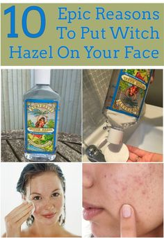 10 Epic Reasons To Put Witch Hazel On Your Face... Fight Acne, Nourish Dry Skin, Reduce that Puffy eye look, Treat and Protect the Lips, Gums, and Inner cheeks, relieve sunburn pain, minimize damage from sun exposure and fight signs of aging, treat Eczema, Refresh your face, Soothe and prevent Razor Burn, Heal cuts and fade bruises. Clink link for more information.