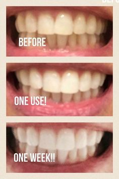 Top Oral Health Advice To Keep Your Teeth Healthy. The smile on your face is what people first notice about you, so caring for your teeth is very important. Unluckily, picking the best dental care tips migh Ap 24 Whitening Toothpaste, Teeth Whitening Procedure, Whitening Fluoride Toothpaste, Whitening Skin Care, Best Teeth Whitening, Best Toothpaste, Pole Dancing, Skin Lightening Cream, Oral Health