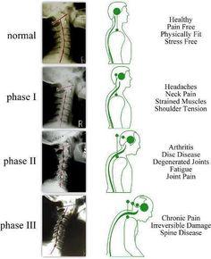 cervicogenic headache exercises - Google Search