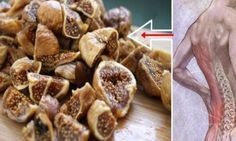 Permanently Remove The Pain In The Spine, Back And Legs With This Homemade Natural Solution – Natural Remedies Spine Pain, Leg Pain, Back Pain, Eating Raw, Natural Solutions, Learn To Cook, Healthy Life, Healthy Food, Natural Remedies