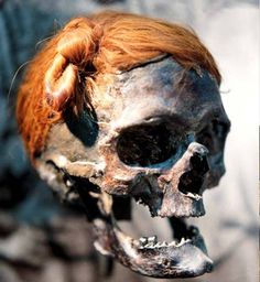 The Osterby Man. Only his decapitated head was found, wrapped in a deerskin cape. He was likely killed by a blow to his left temple before he was decapitated. His hair, reddened by chemicals in the peat, is tied in an elaborate hairstyle called a Swabian knot. The Roman historian Tacitus, who lived in Osterby Man's era, describes the hairstyle as typical of the Suebi tribe of Germany.