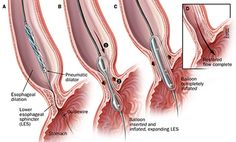 Achalasia-Technique for pneumatic dilation of achalasia. John Hopkins.  Pinned by SOS Inc. Resources.  Follow all our boards at http://pinterest.com/sostherapy  for therapy resources.