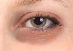 göz altı morlukları nasıl gecer