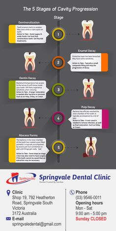 Tooth decay doesn't happen all at once. It comes in stages, with minor cavities eventually developing into severe tooth decay and worse. As you might have guessed, it's always best to treat a cavity sooner rather than later. Dental Health, Oral Health, Dental Care, Dental Hygiene School, Dental Assistant, Oral Hygiene, Reverse Cavities, Dental Posters, Remedies For Tooth Ache