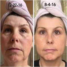 Seriously. What are you waiting for?!?! Reverse in the AM + Redefine Amp It Up in the PM + Multi Function Eye Cream + consistency + patience = INCREDIBLE RESULTS. WOW!!! Lmessage me if you'd like more info, and a mini facial!!! www.scurrey.myrandf.com