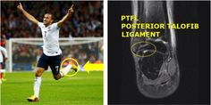 #AndrosTownsend faces 10 weeks of recovery after undergoing left ankle surgery to repair ligament damage. The #England winger has been ruled out of the 2014 World Cup. #injuries #FIFAWorldCup http://insideinjuries.com/andros-townsend-ankle/