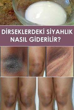 отбеливание кожи How to Get Rid of Dark Elbows and Knees Skin Tips, Skin Care Tips, Beauty Care, Beauty Skin, Face Beauty, Home Remedies, Natural Remedies, Beauty Secrets, Beauty Hacks