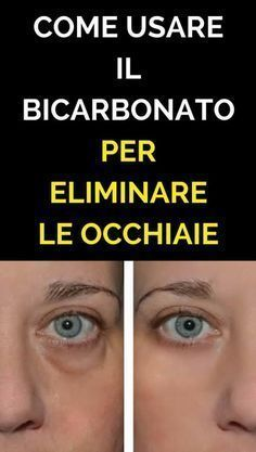 Health Discover Metti Del Bicarbonato Sotto Gli Occhi Ed Eliminale Per Sempre! Healthy Beauty Healthy Tips Health And Beauty Health And Wellness Health Fitness Face Care Body Care Skin Care Stress Healthy Beauty, Healthy Tips, Health And Beauty, Health And Wellness, Health Fitness, Face Care, Body Care, Skin Care, Holistic Remedies