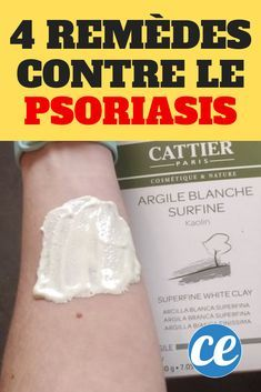 four White Clay Cures To Clear Psoriasis Completely. Double Menton, White Clay, The Cure, About Me Blog, Health, Crochet, Hair, Cure For Psoriasis, Psoriasis Remedies