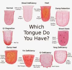 What Is Acupuncture This is what acupuncturists can tell about you by looking at your tongue. Health Facts, Health And Nutrition, Health Tips, Health And Wellness, Health Fitness, Health Chart, Alternative Heilmethoden, Alternative Health, Arte Com Grey's Anatomy