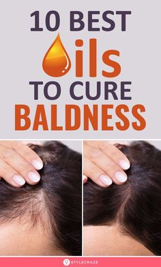 Best Oils To Cure Baldness - Care - Skin care , beauty ideas and skin care tips Hair Growth Tips, Hair Care Tips, Hair Lice, Hair Dandruff, Hair Spa, Diy Hair, Hair Remedies, Natural Remedies, Hair