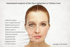 Age related facial sagging and flattening due to the loss of volume in our and - anatomical analysis of the aging face and how to rejuvenate it Skin Anatomy, Facial Anatomy, Igora Hair Color, Sagging Cheeks, Sugar Facial Scrub, Medical Aesthetician, Facial Bones, Facial Proportions, Human Anatomy And Physiology