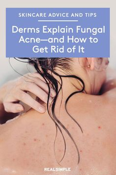 What Is Fungal Acne—and How Do You Get Rid of It? | You may have fungal acne if you have stubborn breakout on your chest, arms, or back that just won't give in to acne medication. The good news is that fungal acne isn't hard to treat with these derm-approved fungal acne tips. #beautytips #realsimple #skincare #makeuphacks #bestmakeup Antifungal Medication, Normal Body, Anti Dandruff Shampoo, Apartment Makeover, Cosmetology, How To Get Rid, Skin Makeup, Plastic Surgery, Black Beauty