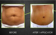 LOSE YOUR BELLY ! IN TIME FOR SUMMER ! WANT A WRAP FOR OPNLY $25 ?     LIKE MY FACEBOOK PAGE  FACEBOOK.COM/WORKYABODY  WORKYABODY.COM