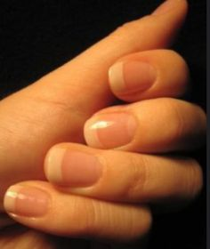 Taking good care of your nails may reflect not just on good hygiene, but also on your overall health condition. Healthy nails appear pink, smooth and even in shape. Uncared for nails may indicate poor health maintenance or a sign of a developing illness. This article talks about different nail characteristics and their associated health conditions and the much needed tips on how to get healthy nails.