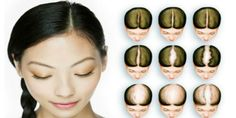 For the women, hair loss is tending to result in thinner hair which is falling more easily.