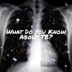 Tuberculosis  Health Need To Know, Did You Know, Health, Health Care, Salud