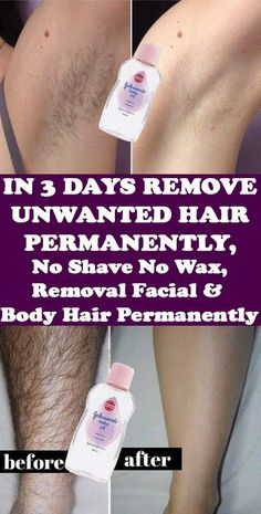 Today I will share an amazing unwanted hair removal treatment with which you can. Today I will share an amazing unwanted hair removal treatment with which you can remove facial and body hair permanently. This method is easy, effective and natural. Natural Remedies For Allergies, Natural Headache Remedies, Natural Remedies For Anxiety, Natural Home Remedies, Herbal Remedies, Natural Healing, Fitness Workouts, Hair Removal Remedies, Best Hair Removal